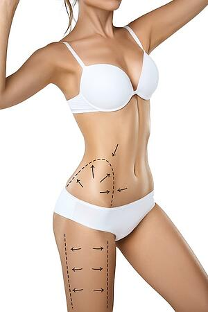 liposuction-plastic-surgery-atlanta-plastic-surgeon